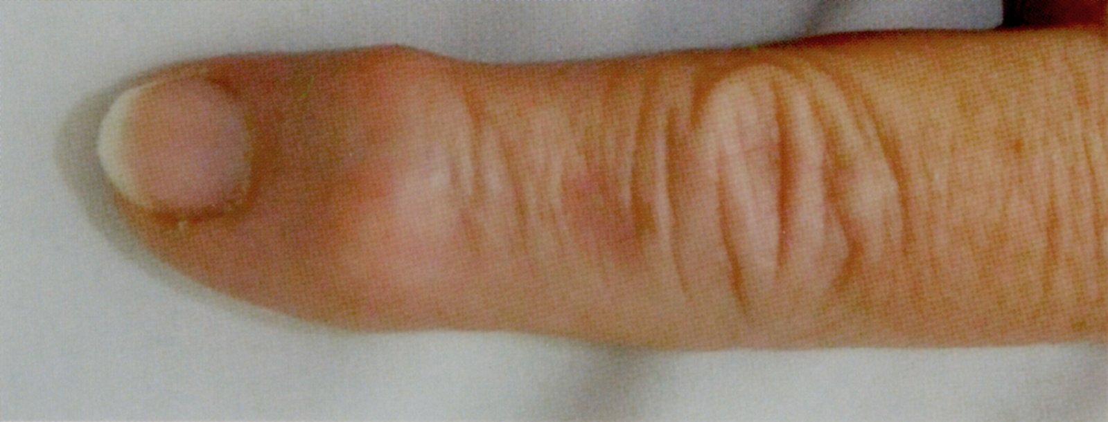 mi okozta a bokaízület fájdalmát az ízületek nyújtása, mint kezelni
