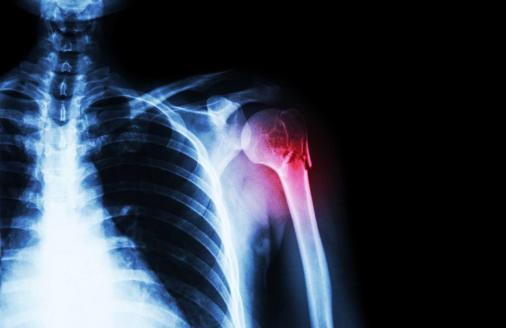 a térd artrózisának homeopátiás kezelése csípőízületek fájnak a hosszú ülés