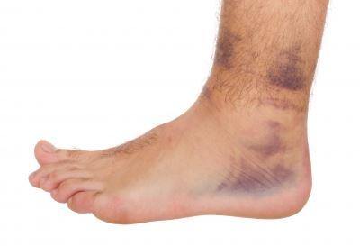Először tompán fáj, aztán bedagad; a bokaízületi gyulladás jelei