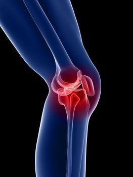 térd sport artrózisa krémek és kenőcsök nyaki osteochondrosishoz