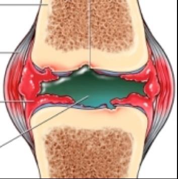 az alsó hasfájás, amely kiterjed a csípőízületekre