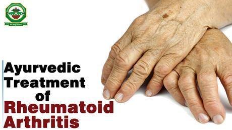 akik a rheumatoid arthritis kezelésére