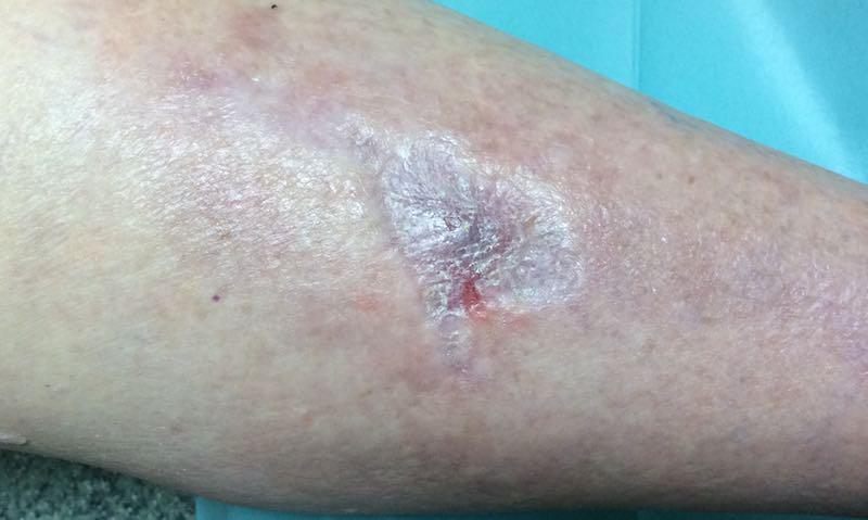 kricoid artritisz mi az kenőcs az ízületek számára