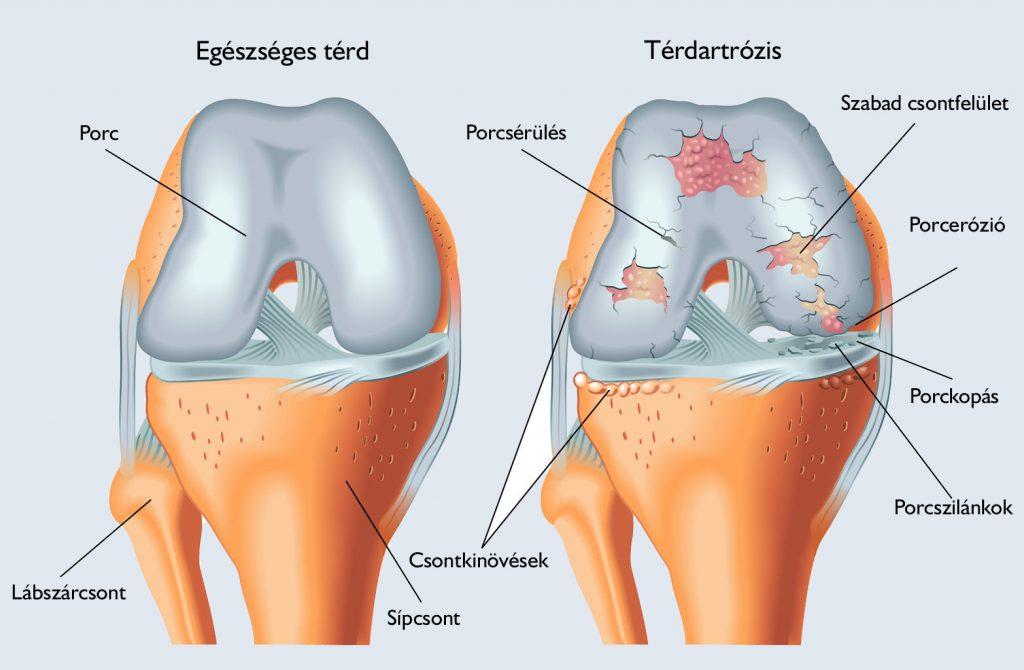 csehország a térd artrózisának kezelése ízületi fájdalomcsillapító kompresszor