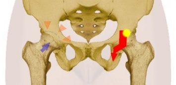 a jobb bokaízület ízületi gyulladása
