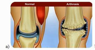 artrózis a tarsus ízületeiben