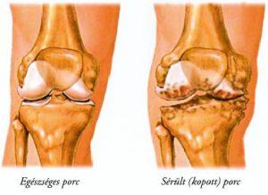 artrózis kezelés és testmozgás vad fokhagyma ízületi kezelés