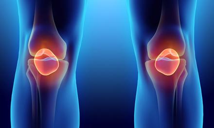az artrózis kezelésében segít térdproblémák időskorúaknál