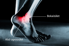 fájó lábízület kezelése rheumatoid arthritis térd gyógyszeres kezelése