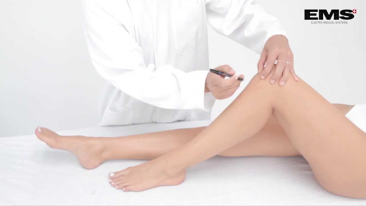 térd myositis kezelése