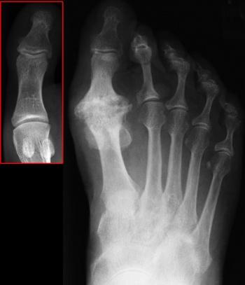 metatarsophalangeal osteoarthritis fájdalom könyökízületi röplabda