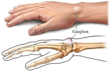 az alsó végtagok ízületeinek gyulladásának okai a boka fájó fájdalmától