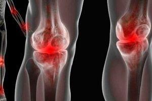 ízületi fájdalom sacroiliitisben kenőcsök gerincbetegség oszteokondrozisához