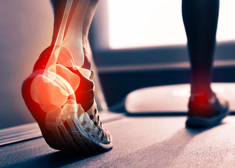 bokaízület ízületi ízületi gyulladása boka fájdalom kezelést okoz