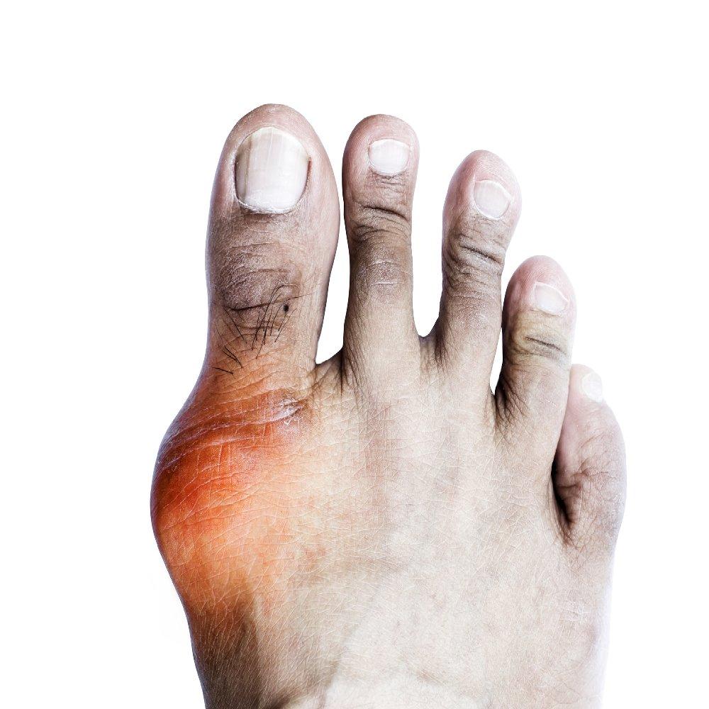 kenőcsök tinktúrái ízületi fájdalmak kezelésére csípőízület ízületi felületeinek osteochondrosisa
