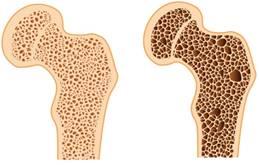 csípő-csontritkulás kezelés
