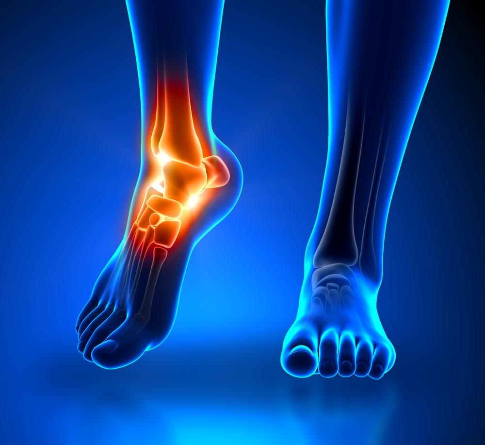az akut bokaízület prognózisos kezelést okoz