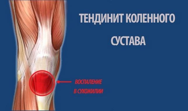kompresszorok térd artrózisának kezelésére az ízületek megsérülnek a fagytól