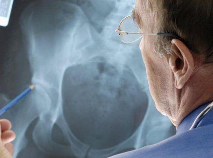 jobb oldali derékfájás a vállízület középső szalagjának károsodása