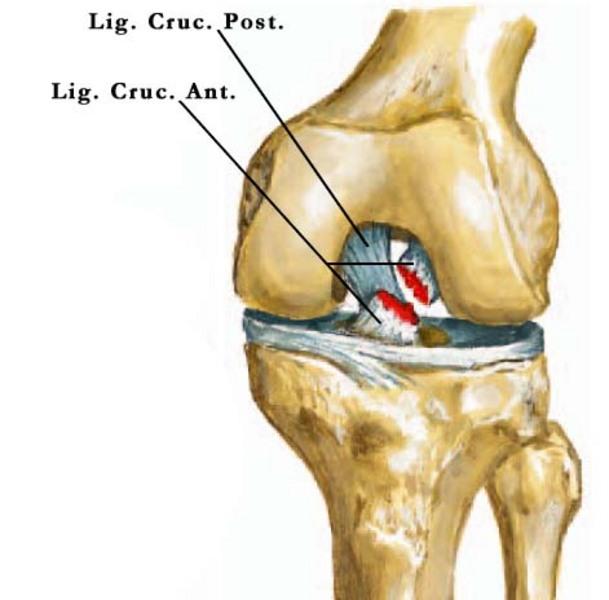 folyadék a térdízület artrózisában ízületek és gerinc krónikus betegségei