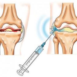 A térd osteoarthritisére ható szerek