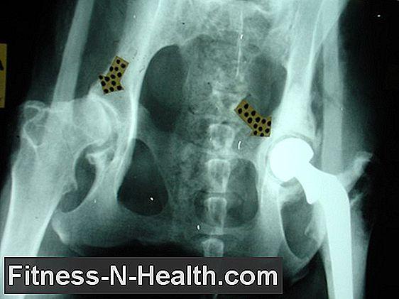 csípőízület arthrosis-arthritis kezelése