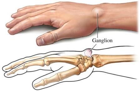csukló-rándulások kezelése artróziskezelő gyógyszerek injekciói