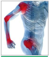 térdízületi arthrosis