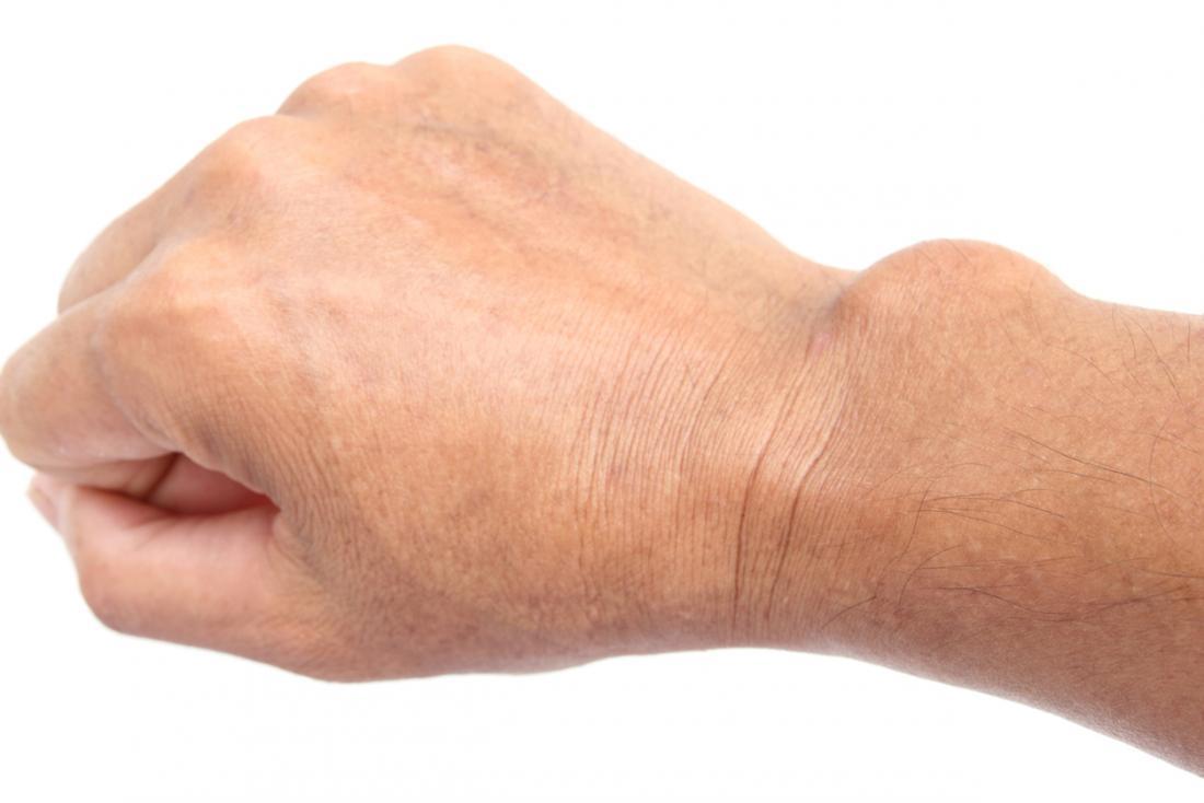 ízületek az ujjak kezelésére