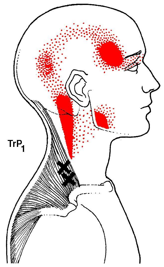 a térd olajkezelése gerinc artrózis kezelési injekciók