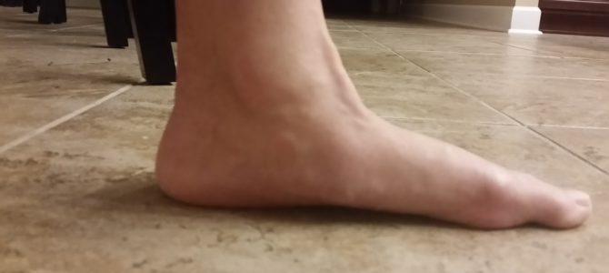 váll és csípő fájdalma könyökízület ödéma sérülés után