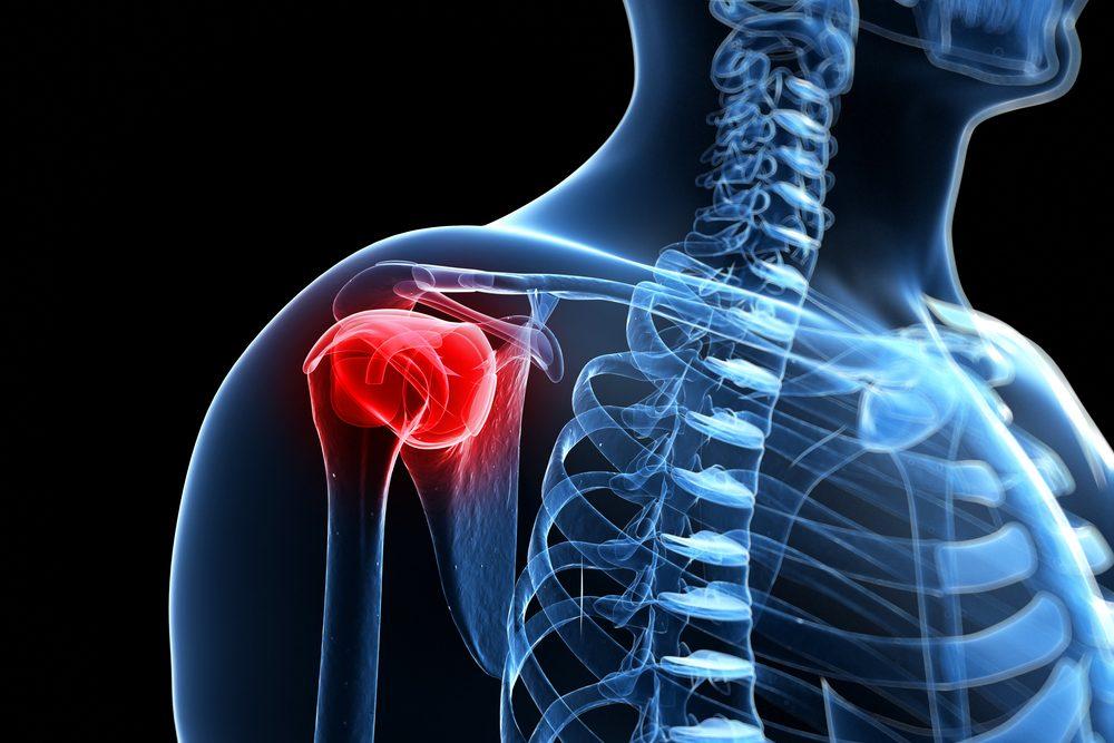 a vállízület felmelegedése ízületi gyulladással fájdalom a kezek ízületeiben a kezelés okainak