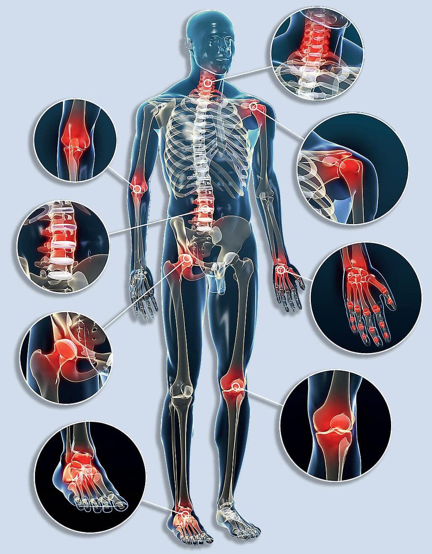 az artrózis genetikai kezelése