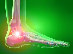 fáj a vállízületek boka tünetei