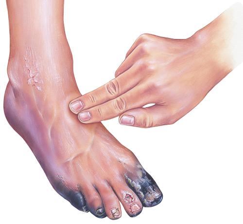 hogyan lehet kezelni a lábát