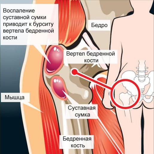 fájó ideg a vállízületben a vállízület kenőcsének ízületi fájdalmak