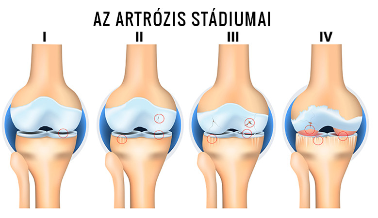 az artrózis tornakezelése 35 fáj az ízület