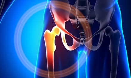 ami miatt a csípőízület fájhat közös elasten készítmény felülvizsgálat