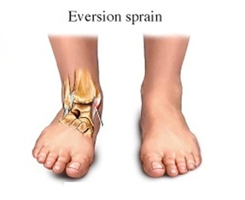 bokaízület törés kezelése a térdízületek fájdalmának oka éjjel