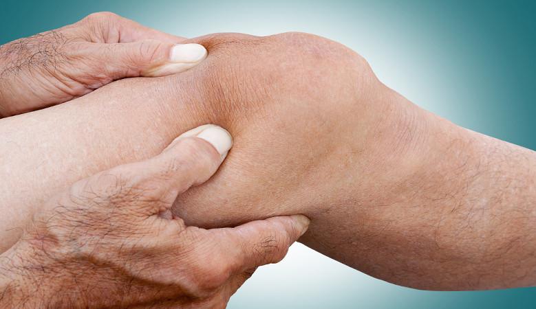 gipsz, a térd meniszkuszának károsodásával a térdízület duzzanata a meniszkusztörés során