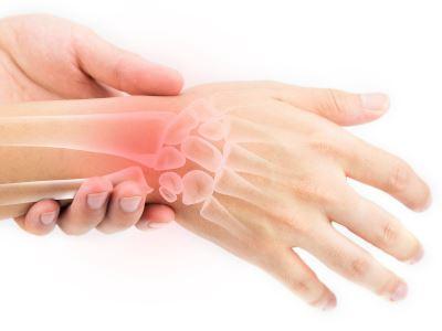 kezelés csukló törés után kattanás az ízületekben fájdalom nélkül