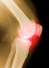 a jobb csípőízület fáj pénz fa ízületi fájdalom