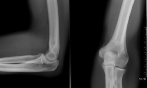 fut a csípőízület artrózisával