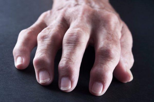 fájdalom a kéz ízületeiben