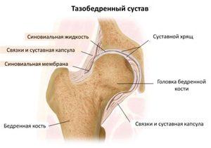 fájdalom, ha a csípőízületben mozog