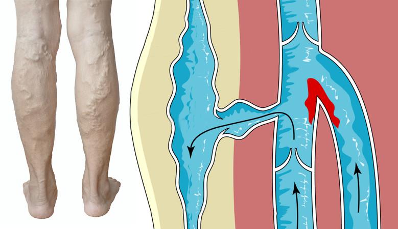 fájhat-e az ízületek vesebetegséggel fájdalom a belső szervekben és az ízületekben