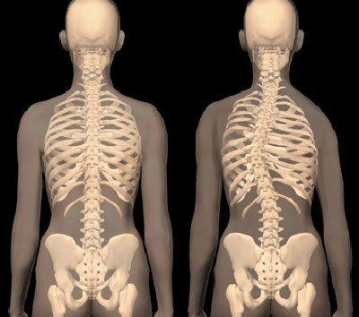 fájdalom a csípőízület pszichoszomatikájában