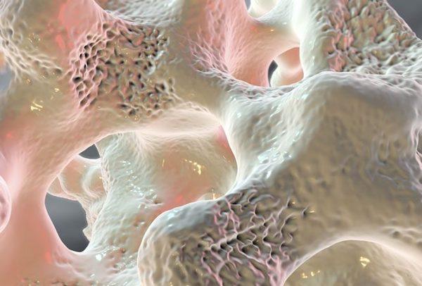 gyógyszerek az ágyéki csontritkulás az ujj falának ízületének gyulladása