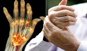 rheumatoid arthritis térd gyógyszeres kezelése