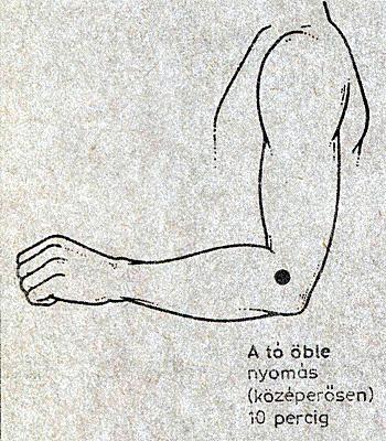 ha fájnak a kézízületek és hogyan kell kezelni